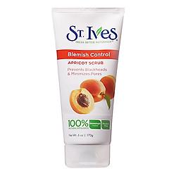 Sữa Rửa Mặt Ngăn Ngừa Mụn St.Ives Chiết Xuất Trái Mơ (170g)