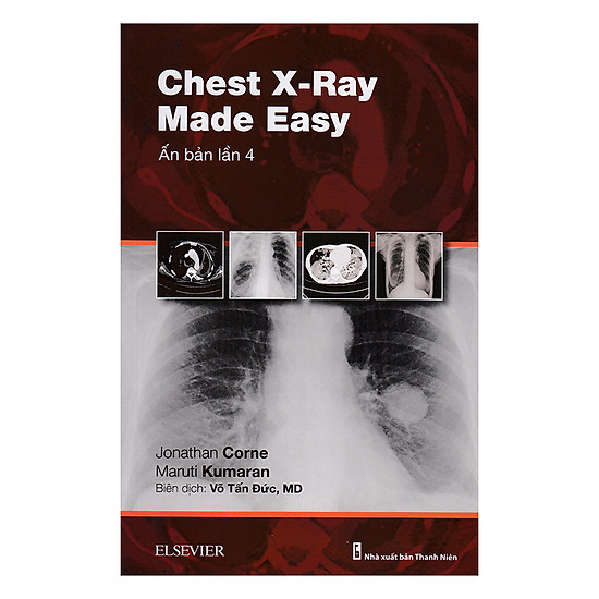 Chest X-Ray Made Easy (Ấn Bản Lần 4)